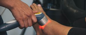 Laser Therapy | Surrey Hwy 10 Physiotherapy and Sport Injury Clinic